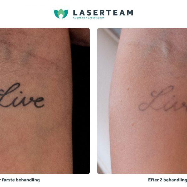 Tattoo: Live tekst