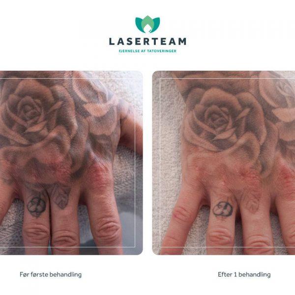 Tattoo: Rose skygger