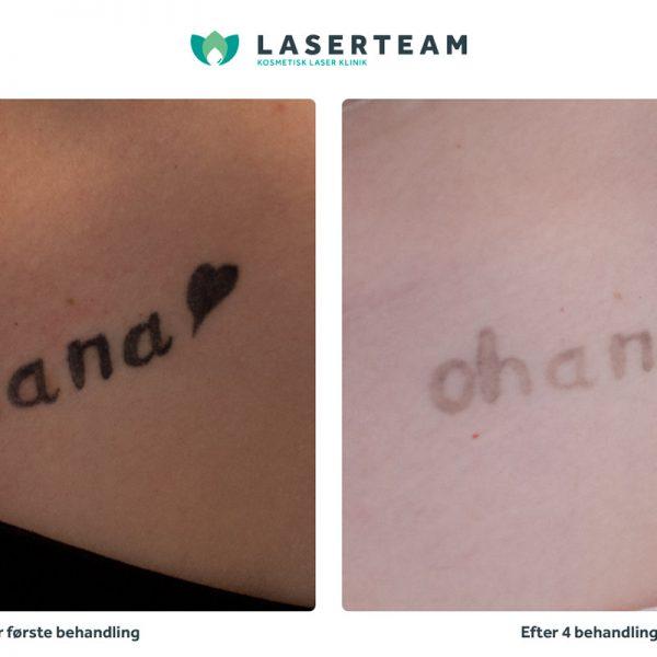 Tattoo: Ohana